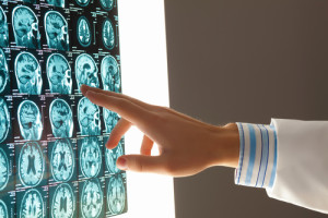 brain injury lawyer in florida