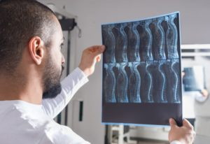 doctor analyzing spinal cord injury x-ray
